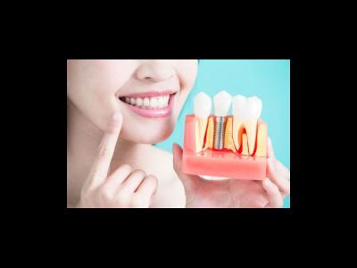 Beneficiile implanturilor dentare la orice vârstă