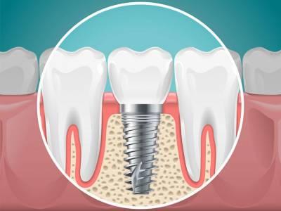 Care este durata de viață a implanturilor dentare?