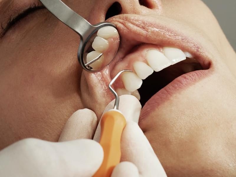 Igiena orală și îngrijirea dinților