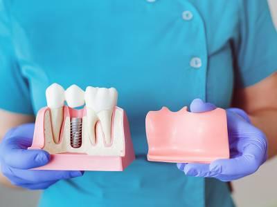 Cum și când se poate pierde un implant dentar?